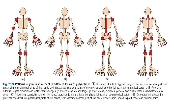 Arthritis Approach 1