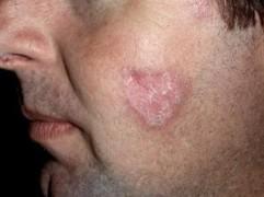 Discoid rash