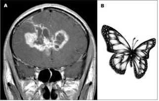 Brain tumors 2