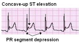 Cardiovascular emergency 7