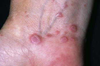 Lichen planus on the wrist