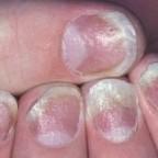 Nails psoriasis