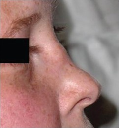 Saddle nose in Wegener's