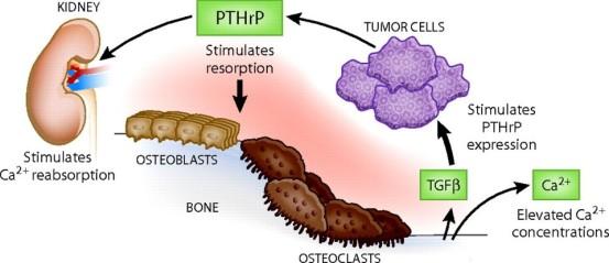 Oncologic emergencies 1