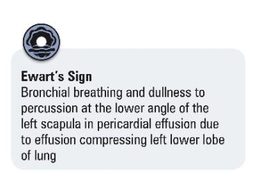 Pericardial diseases 2