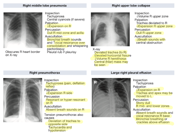 Pulmonary investigations 4