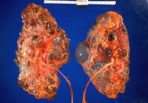 Renal cystic diseases 1