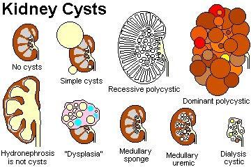 Renal cystic diseases 12