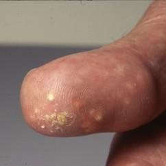Calcinosis cutis