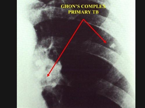 Ghon's complex