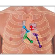 Valvular diseases 6