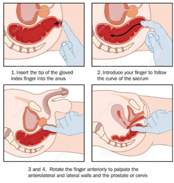 Anorectal abscess apprroach 1