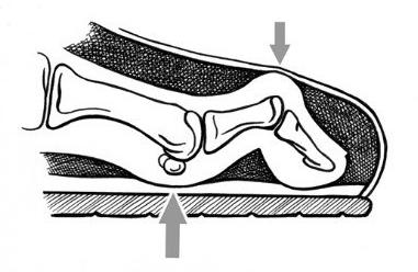 Diabetic foot 1