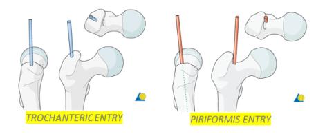 Femur fractures 3