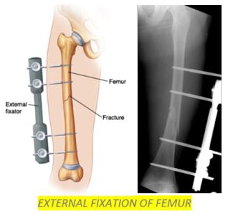 Femur fractures 7