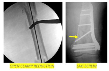 Femur fractures 8