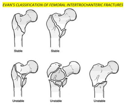 Hip fractures 5
