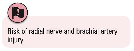 UL fractures 10