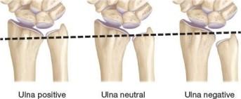 UL fractures 13