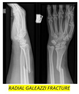 UL fractures 16