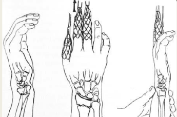 UL fractures 19