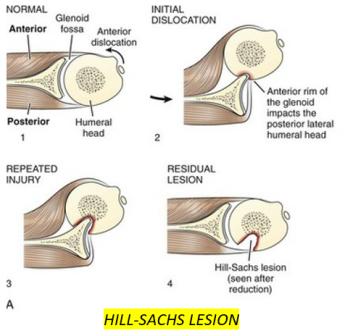 UL fractures 4