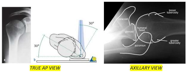 UL fractures 7